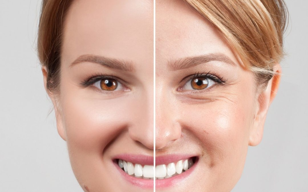 7 Ways To Stimulate Collagen Production