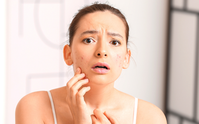 THE POWER OF BENZOYL PEROXIDE TO TREAT ACNE