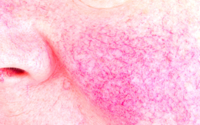 SKINCARE GURU: SKINCARE TIPS AND PRACTICES THAT COULD SAVE YOU WITH YOUR ROSACEA